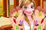 Frozen Anna Foot Doctor